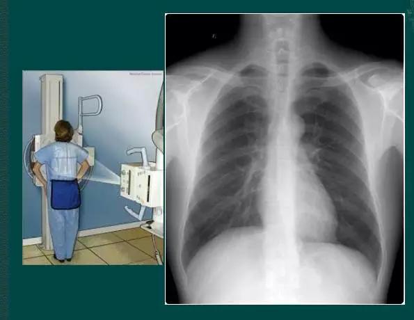 左肺下葉見索條影,拿到胸片卻不會看?送你7個竅門,手把手教你解讀胸片(收藏)